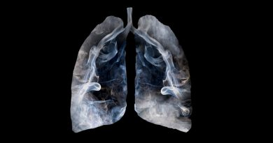 Radiografía de pulmones afectados por el tabaco.