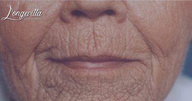 Alteraciones y lesiones asociadas al envejecimiento